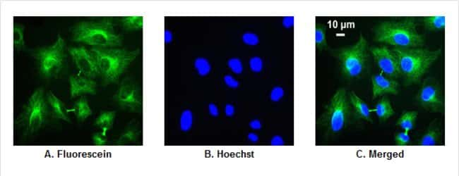 Detection of α-tubulin in A549 cells demonstrates use of fluorescein-labeled secondary antibody