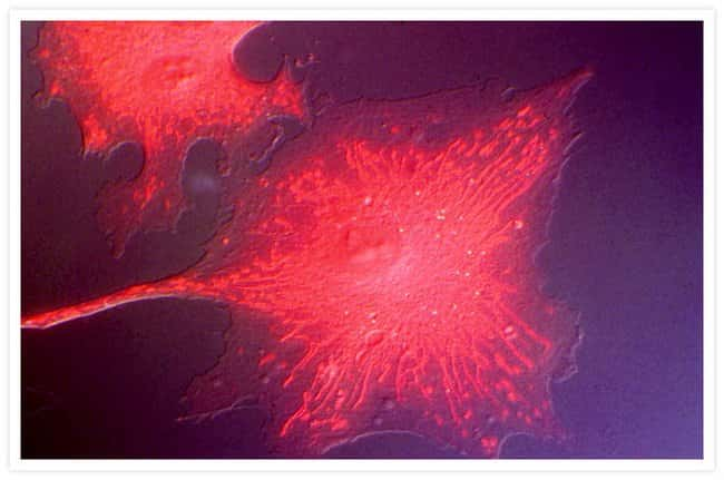 Mitochondria of bovine pulmonary artery endothelial cells (BPAEC) labeled with MitoTracker® Red CMXRos (M7512), aldehyde-fixed and observed using differential interference contrast (DIC) and Texas Red