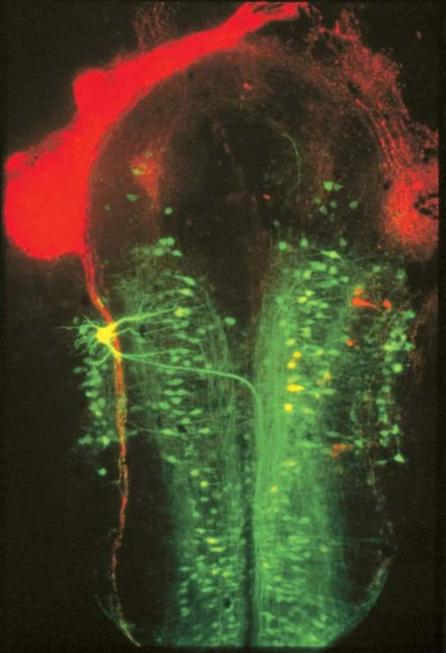 Brain of a Xenopus laevis embryo.