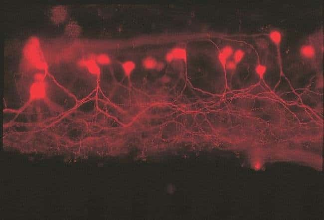 Secondary motor neurons in a male western mosquitofish (Gambusia affinis affinis) spinal cord.