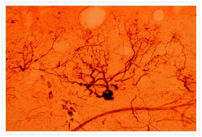 A mitral cell in the olfactory bulb of a chinook salmon labeled using the NeuroTrace® BDA-10,000 Neuronal Tracer Kit.