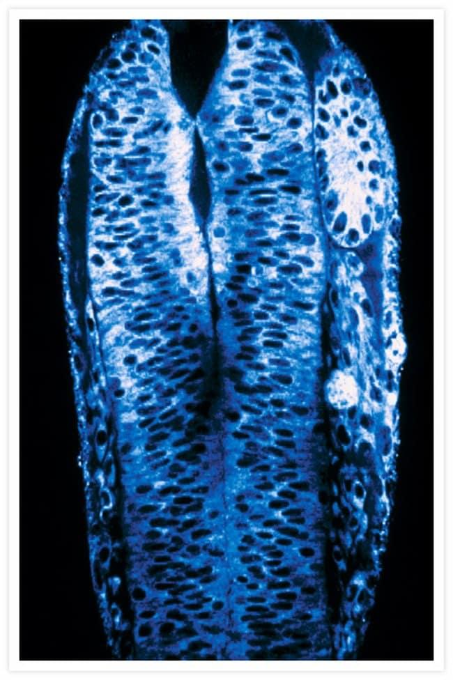 Dorsal view of a zebrafish embryo. BODIPY® 505/515.