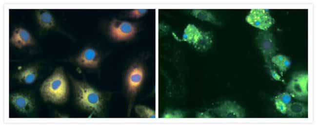 Normal and camptothecin-treated bovine pulmonary artery endothelial cells (BPAEC) were stained with C<sub>4</sub>-BODIPY® 500/510 C<sub>9</sub> (B3824) and Hoechst 33258 (Cat. No. H1398, H3569, H21491