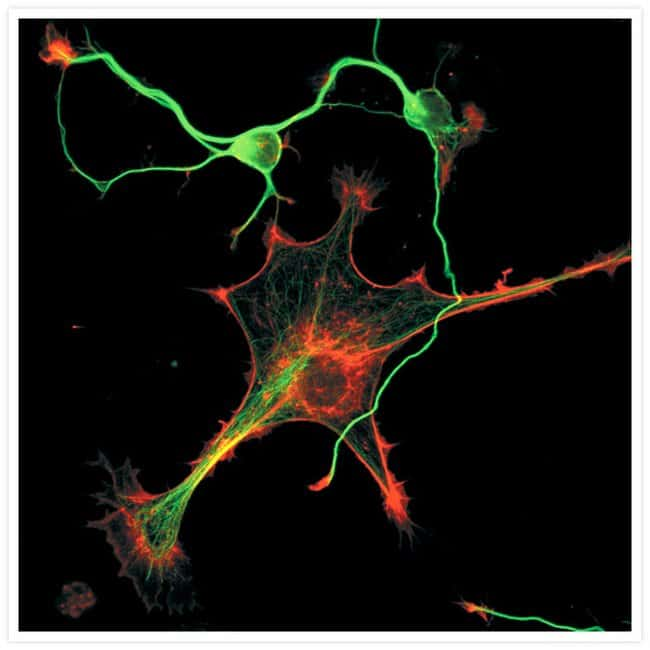 Cytoskeleton of a mixed population of granule neurons and glial cells