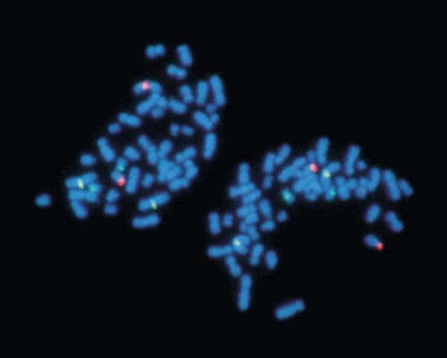 Human metaphase chromosome spreads.
