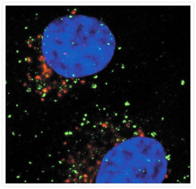 Early endosomes in live HeLa cells identified after a 10-minute incubation with green-fluorescent Alexa Fluor® 488 epidermal growth factor (Cat. no. E13345). The cells were subsequently fixed with par