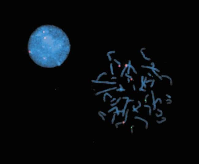 a-Satellite probes to chromosomes 1, 15 and 17 were labeled by nick translation with biotin-11-dUTP, ChromaTide Texas Red-12-dUTP (C7631) and ChromaTide Oregon Green 488-5-dUTP, respectively. Followin