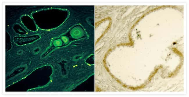 Human prostate tissue with adenocarcinoma imaged using an Alexa Fluor 488 FluoroNanogold conjugate. Tissues were labeled with an anti-cytokeratin antibody, followed by staining with the Alexa Fluor 48