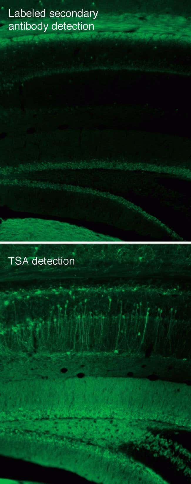 Tyramide signal amplification of immunofluorescent staining in mouse brain sections.