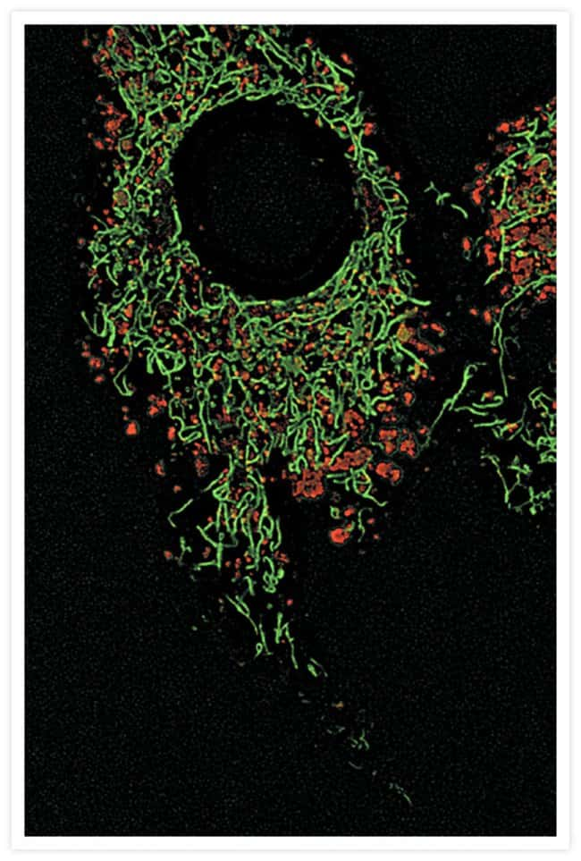 Bovine pulmonary artery endothelial cells (BPAEC). LysoTracker® Red DND-99 and MitoTracker® Green FM.