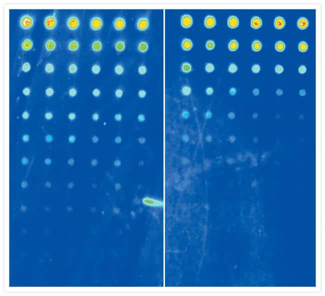 Protein detection on microarrays using BODIPY® FL-X SE or SYPRO® Ruby protein blot stain.