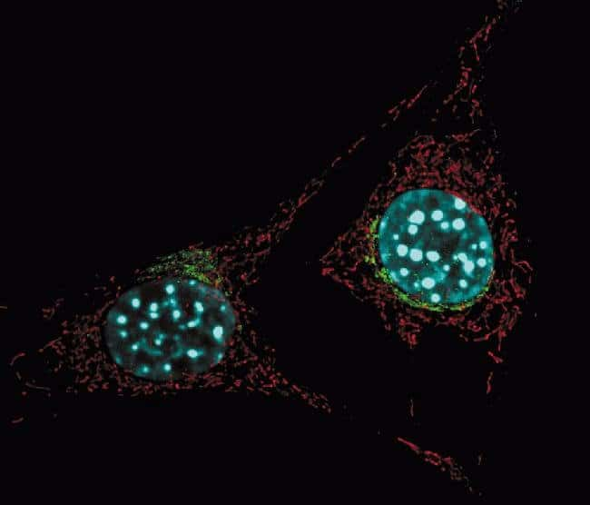 Live NIH 3T3 cells labeled with probes for mitochondria, Golgi and the nucleus.