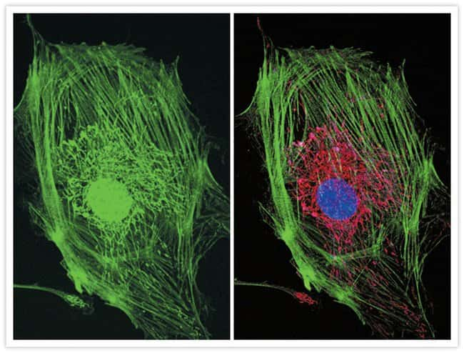 Muntjac fibroblast labeled with three green fluorophores.