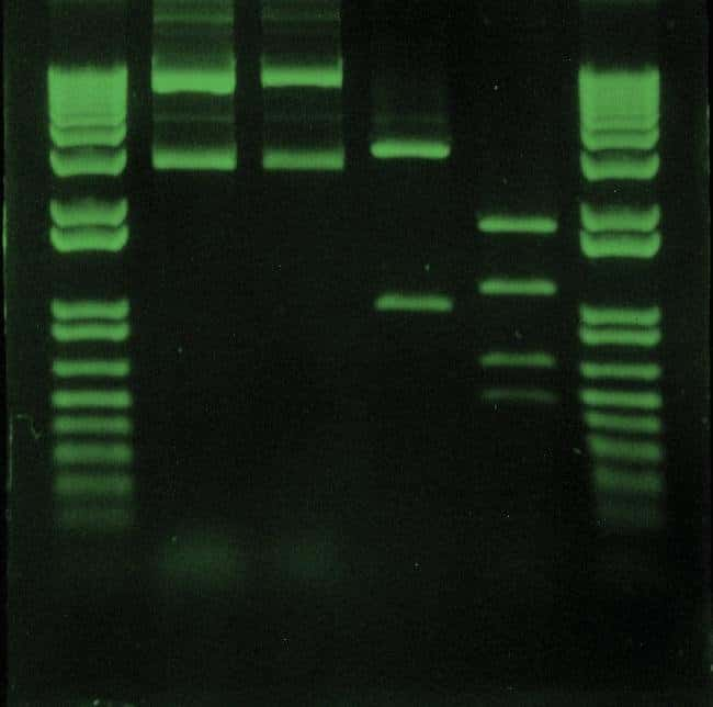 DNA fragments stained with SYBR Safe DNA gel stain.