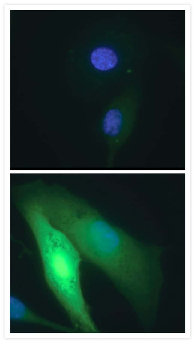 Detection of oxidative stress in live cells using the Image-iT® LIVE Reactive Oxygen Species (ROS) Kit.
