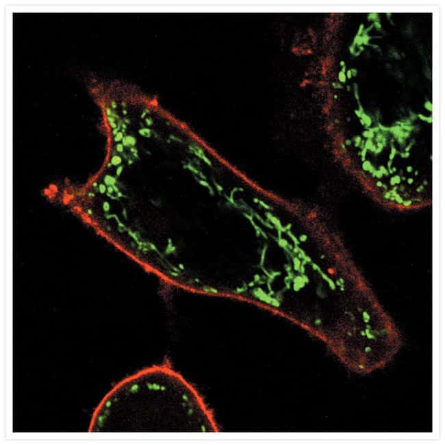 Live HeLa cells stained with the reagents in the Image-iT® LIVE Plasma Membrane and Nuclear Labeling Kit.