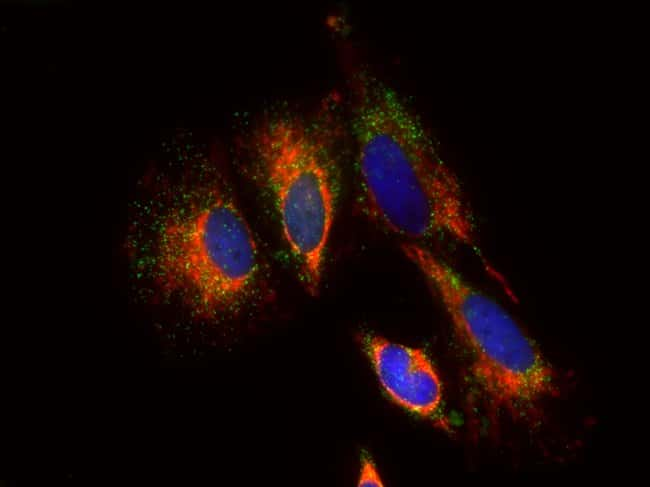 HeLa cells were treated with CellLight Peroxisome-GFP, BacMam 2.0 (Cat. No. C10604) to express GFP in peroxisomes. Cells were fixed and permeabilized with Image-iT Fixation/Permeabilization Kit  (Cat.