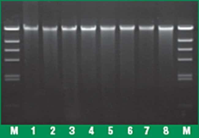 Genomic DNA from various sources purified using GeneJET Genomic DNA Purification Kit