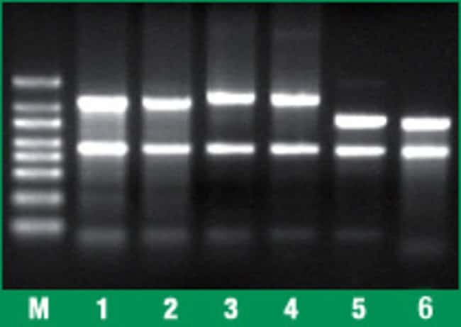 Total RNA from various sources purified using the GeneJET RNA Purification Kit