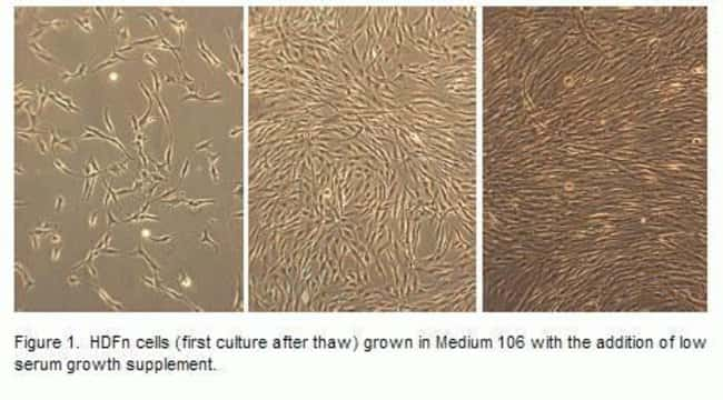 Phase contrast images of human dermal fibroblasts, neonatal (HDFn cells) in culture. HDFn cells (first culture after thaw) grown in Medium 106 with the addition of low serum growth supplement.