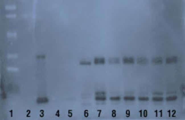 Image is Western blot of eluates and controls following use of Pierce Biotinylated Protein Interaction Pull-Down Kit. Biotin α-Chymotrypsin (b-αCT) bait was bound to the streptavidin agaro