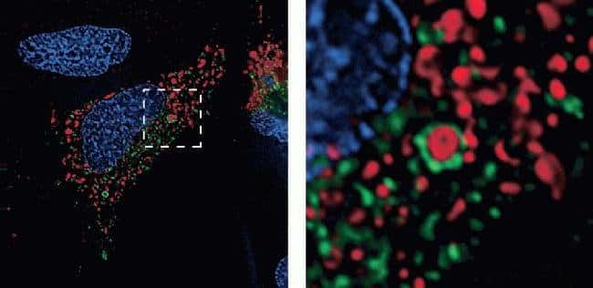 Imaging autophagy in live HeLa cells with CellLight® reagents for mitochondria and lysosomes: