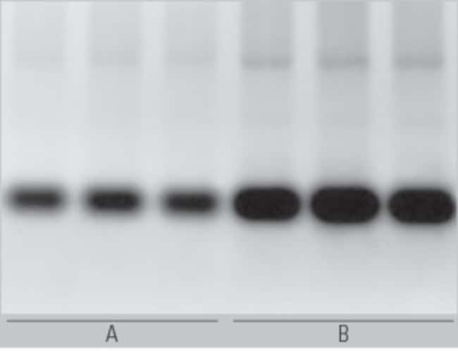 Better performance in <em>in vitro</em> transcription using Tris buffered NTPs in comparison to NTPs, titrated with NaOH