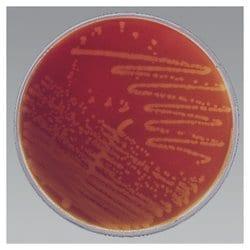Remel™ HBT Bilayer Medium (Human Blood-Polysorbate 80)