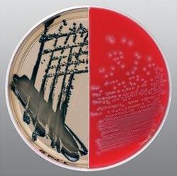 Spectra™ UTI/Sheep Blood Biplate
