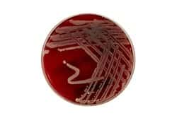 Blood Agar (TSA with Sheep Blood) Medium