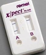 Xpect™ Flu A & B Test