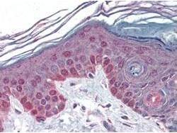 Cyclin T1 Antibody in Immunohistochemistry (IHC)