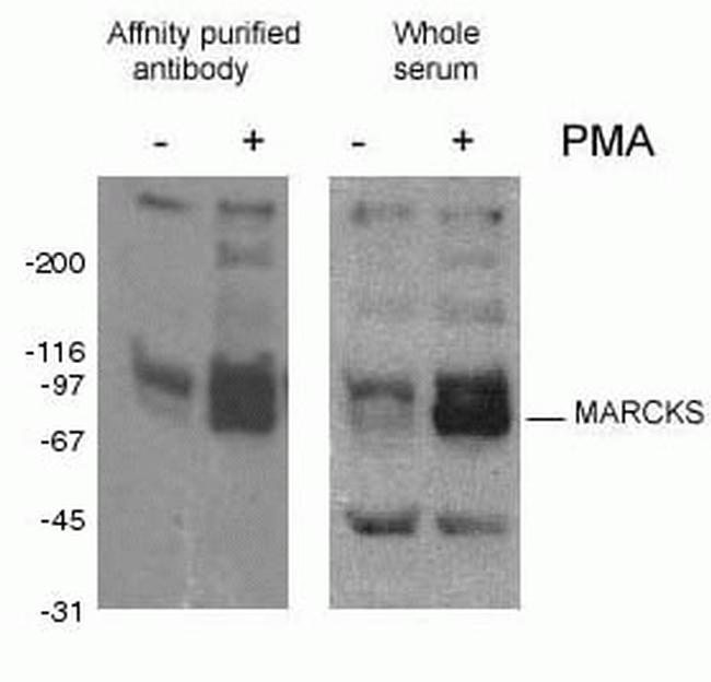 Phospho-MARCKS (Ser93, Ser97, Ser104) Antibody in Western Blot (WB)