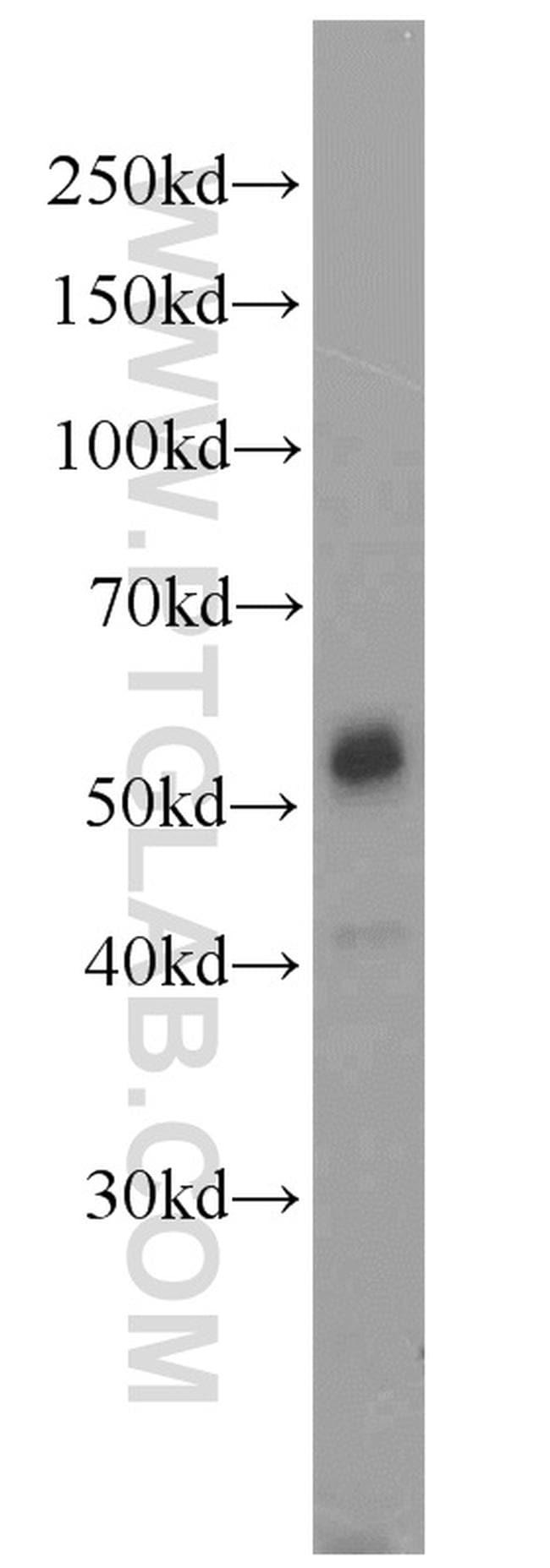 JNK Antibody in Western Blot (WB)