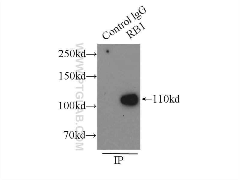 RB1 Antibody in Immunoprecipitation (IP)