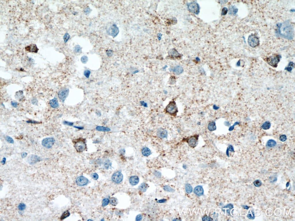 SNAPIN Antibody in Immunohistochemistry (Paraffin) (IHC (P))