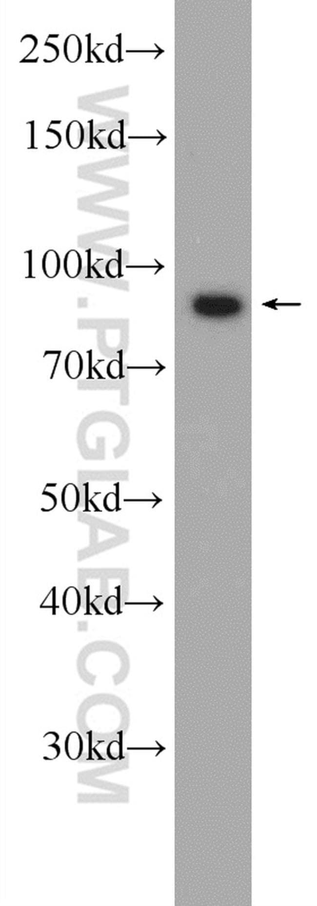 Importin beta Antibody in Western Blot (WB)