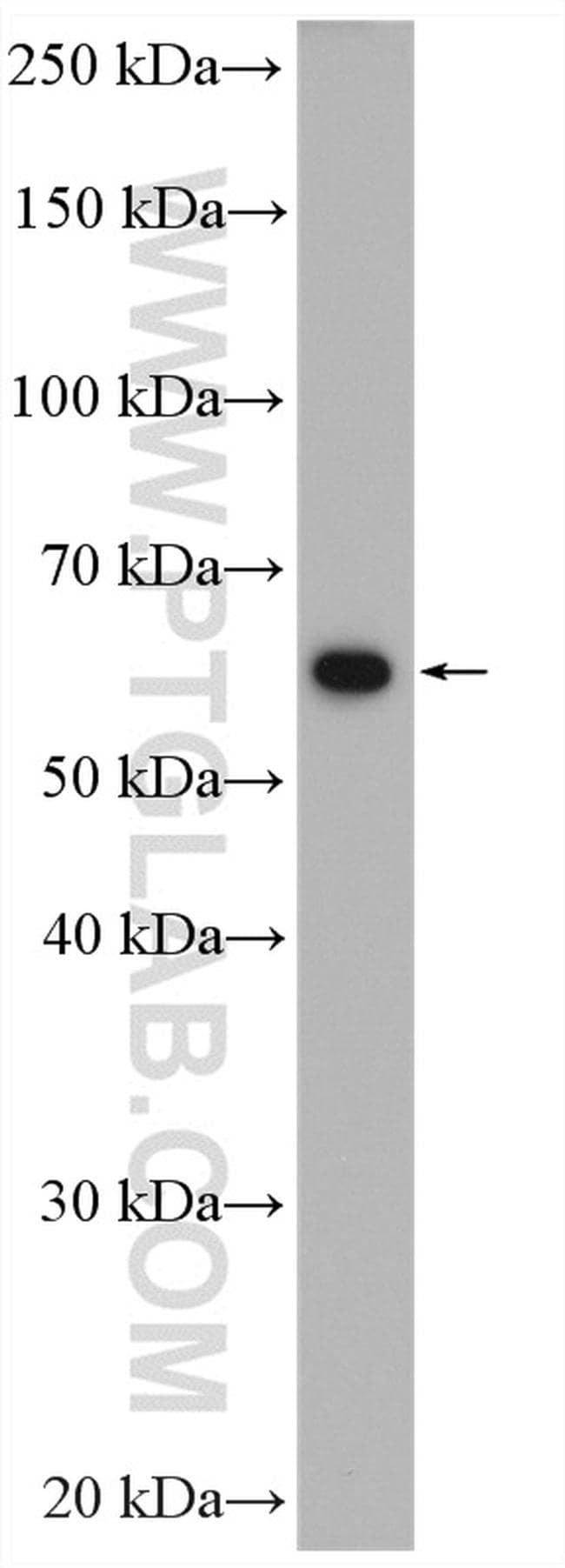PKM Antibody in Western Blot (WB)
