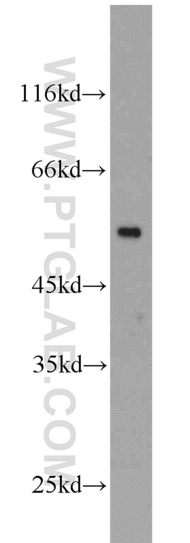 beta Tubulin Antibody in Western Blot (WB)