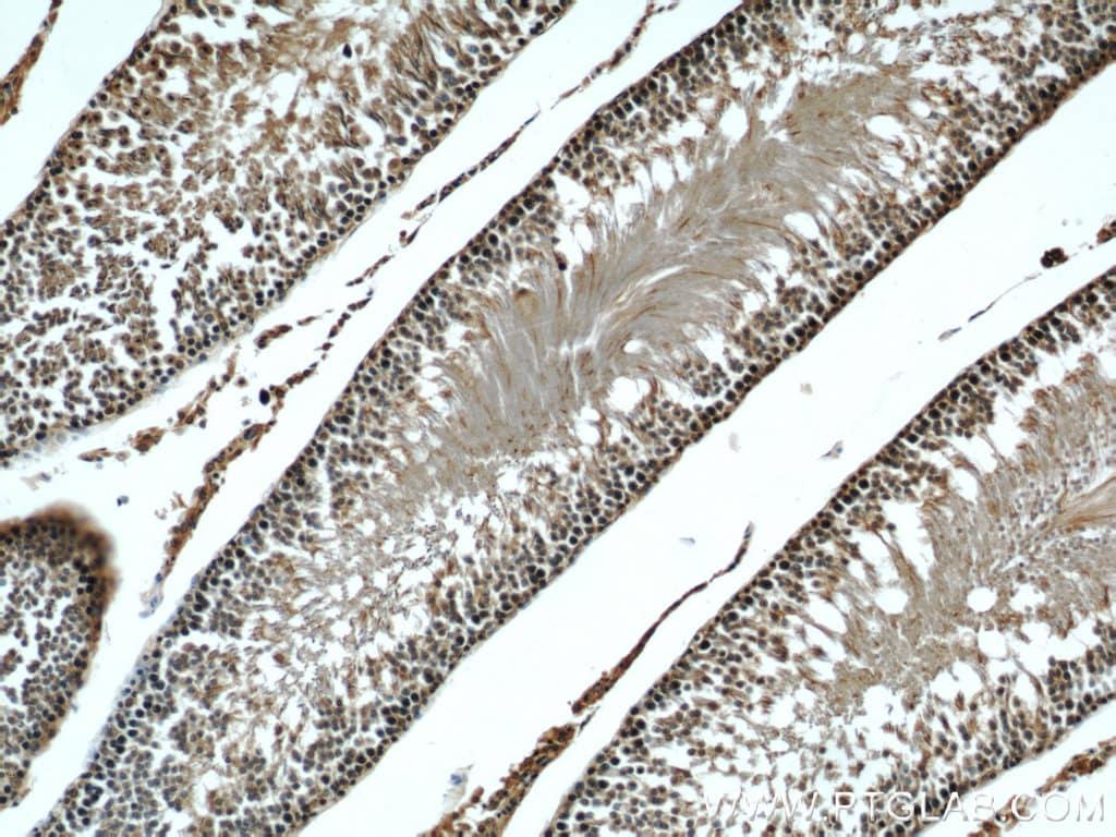 beta Tubulin Antibody in Immunohistochemistry (Paraffin) (IHC (P))