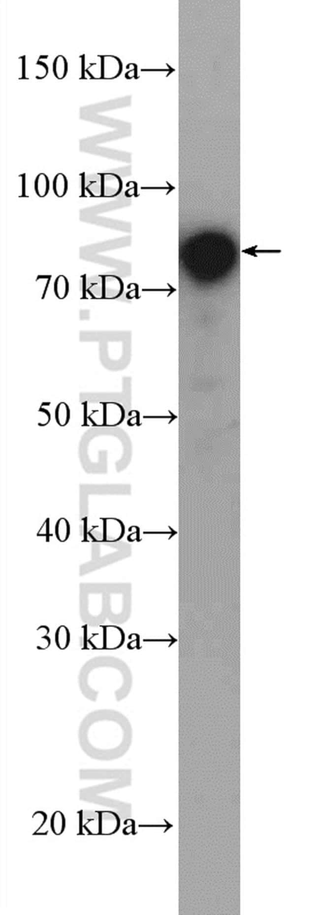 DAB2 Antibody in Western Blot (WB)
