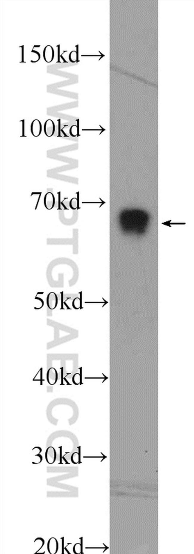 PRC1 Antibody in Western Blot (WB)
