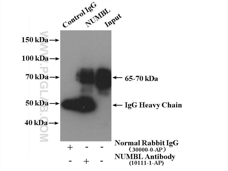 NUMBL Antibody in Immunoprecipitation (IP)