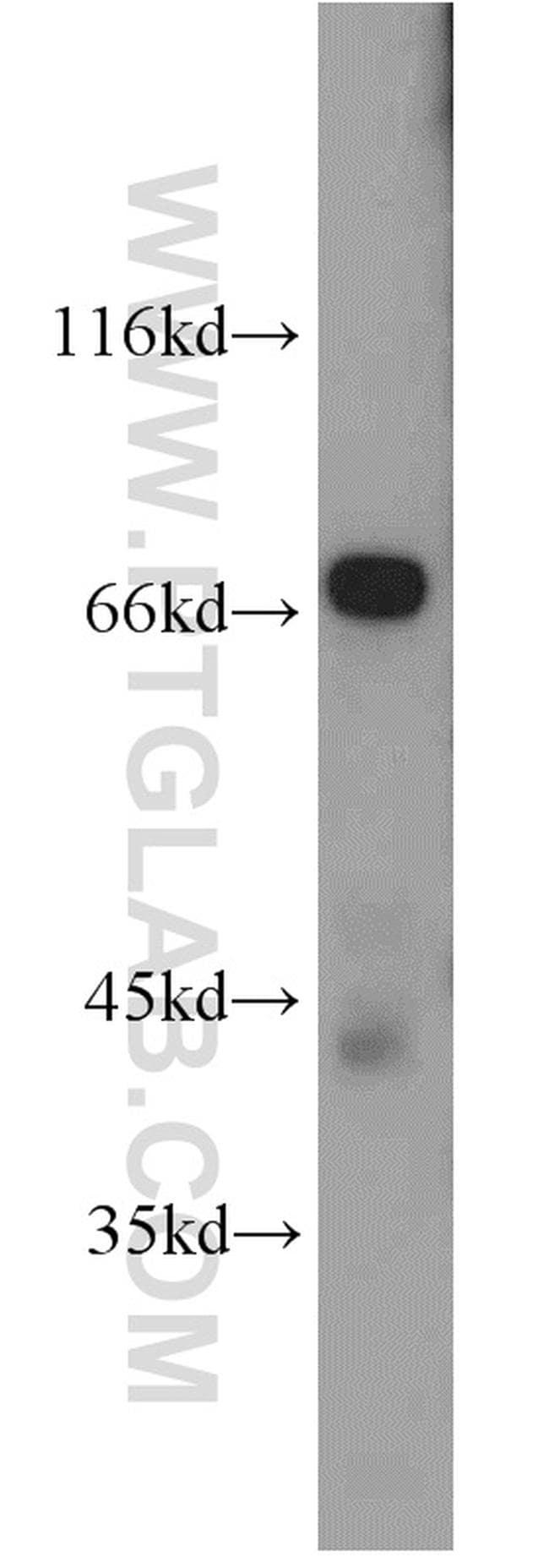 NUMBL Antibody in Western Blot (WB)