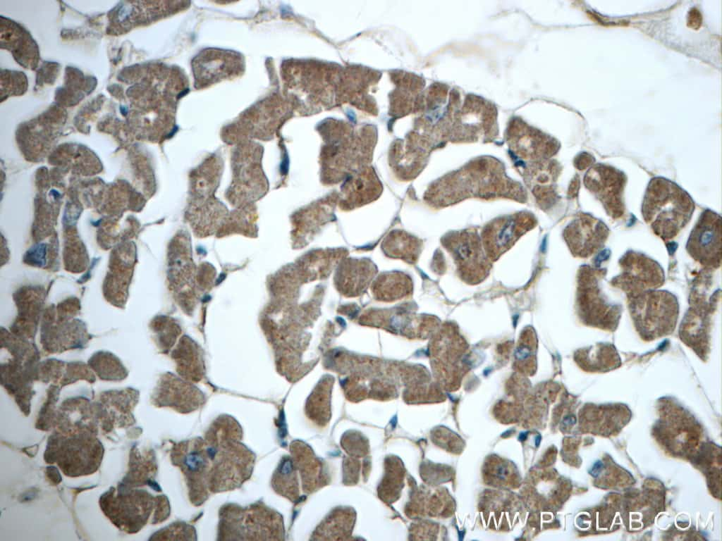 SNX6 Antibody in Immunohistochemistry (Paraffin) (IHC (P))