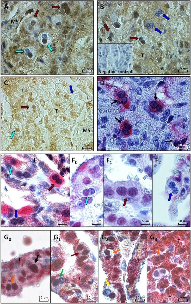 Glucocorticoid Receptor Antibody