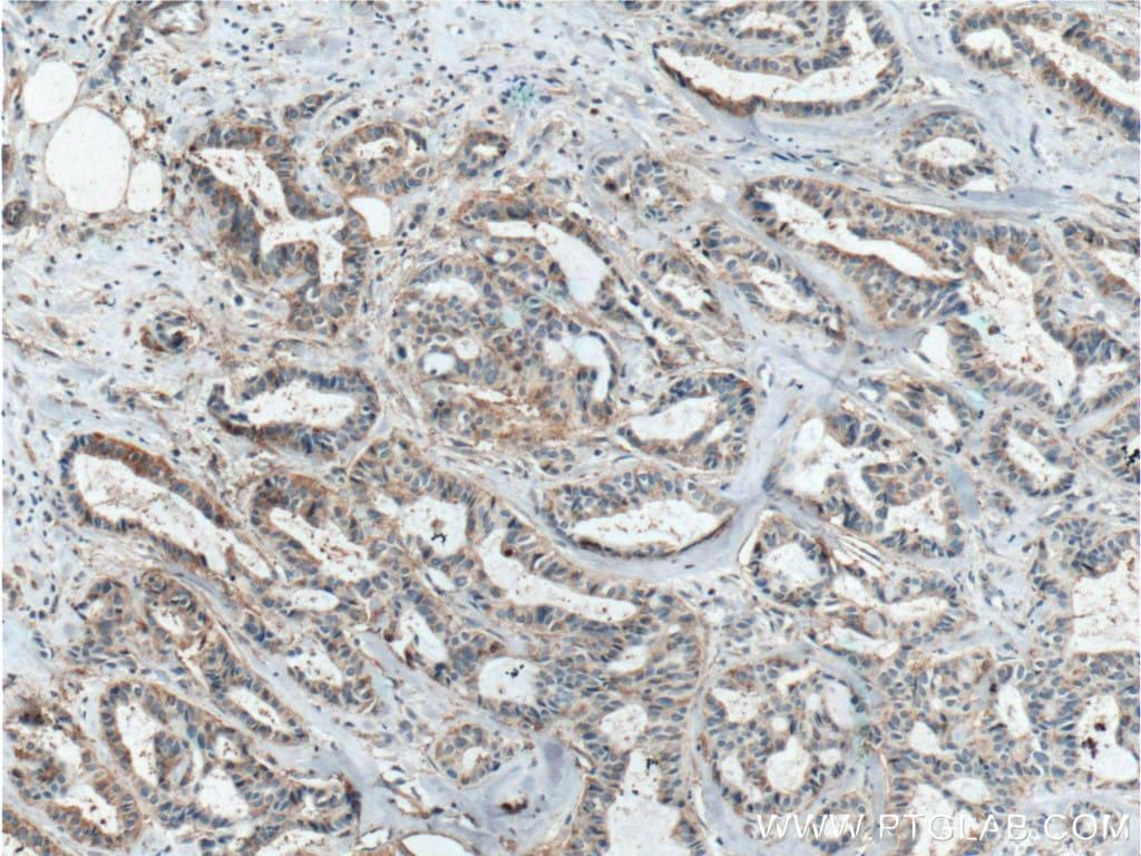 ICAM2 Antibody in Immunohistochemistry (Paraffin) (IHC (P))
