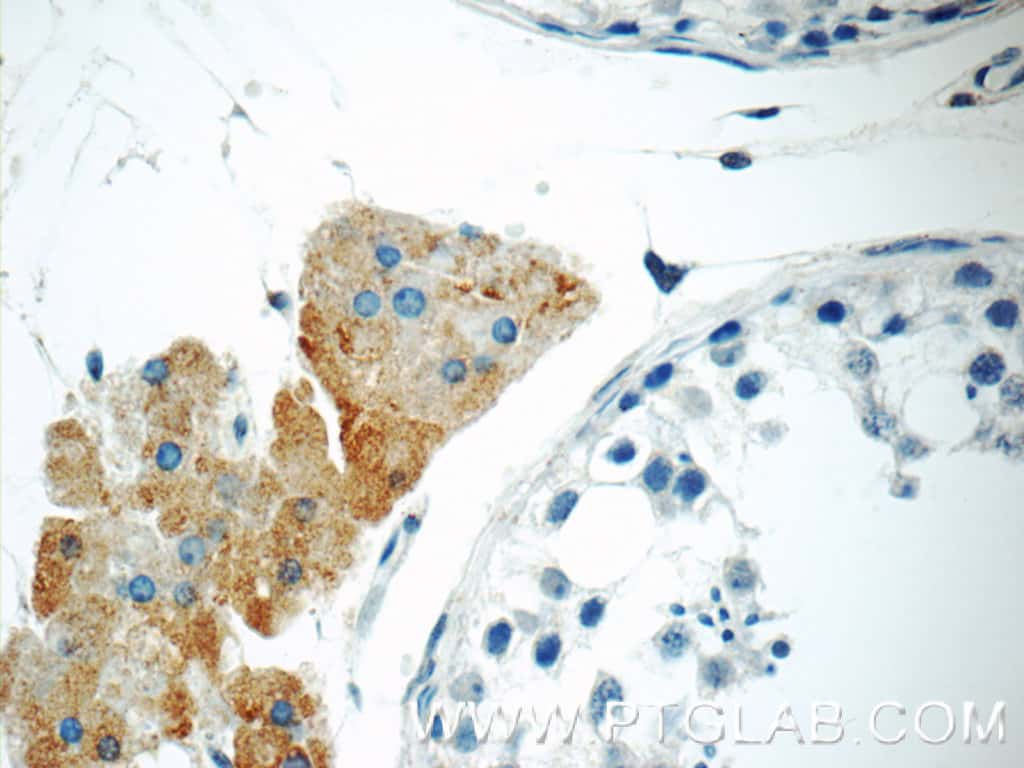 STAT1 Antibody in Immunohistochemistry (Paraffin) (IHC (P))