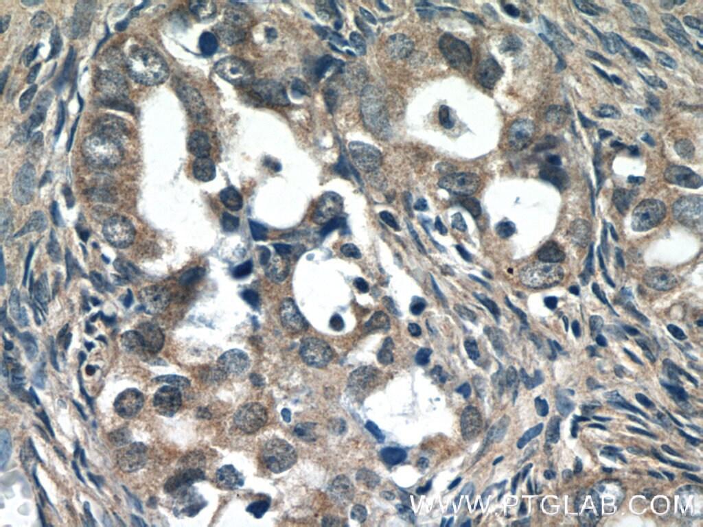 PREB Antibody in Immunohistochemistry (Paraffin) (IHC (P))