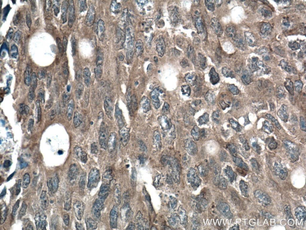 Beta Arrestin 2 Antibody in Immunohistochemistry (Paraffin) (IHC (P))